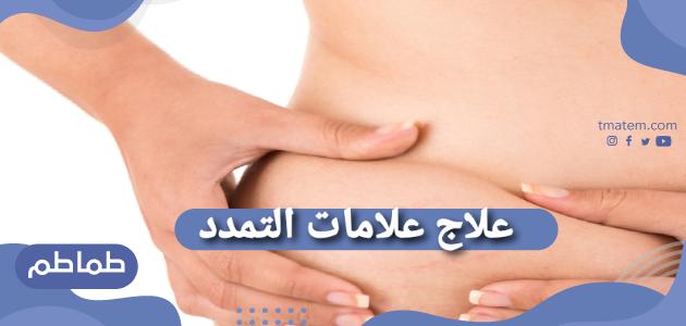 علاج علامات التمدد وعلاج علامات التمدد للجلد بعد الولادة