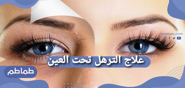 علاج الترهل تحت العين