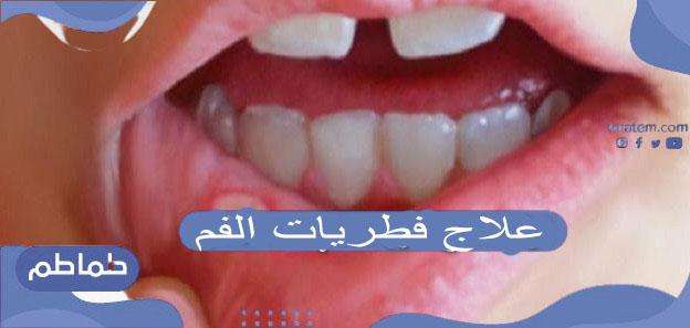 كيفية علاج فطريات الفم عند الأطفال