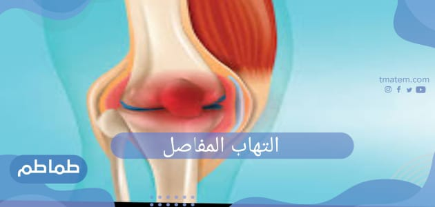 ما هو التهاب المفاصل؟ اسبابه وطرق الوقاية منه
