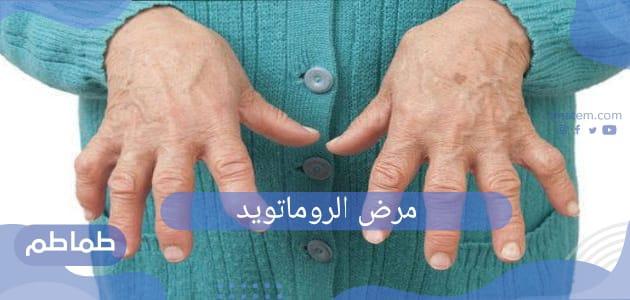 مرض الروماتويد