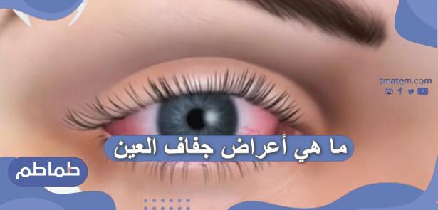ما هي أعراض جفاف العين