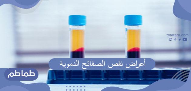 ما هو مرض نقص الصفائح الدموية